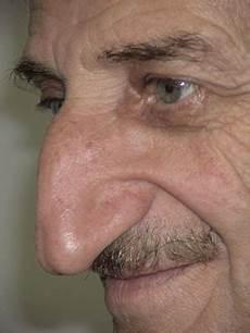 book of guinnes world record world longest nose mehmet