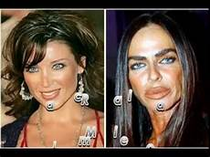 plastic surgery before and after wrong