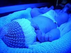 Jaundice Light Babies And Jaundice Toronto Family Doulas