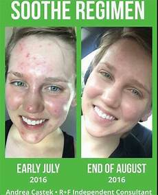 soothe regimen awesome for sensitive skin https