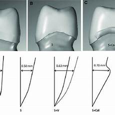 Crown Margin Design Pdf Effect Of Margin Design On Fracture Load Of Zirconia