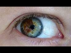 How To Get Light Brown Eyes Fast Doctor Turns Brown Eyes Blue Permanently With Laser Youtube