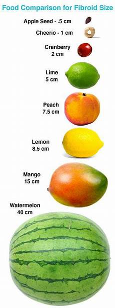 Uterine Fibroid Size Chart Comparing Fibroids With Fruits Fibroids Uterine