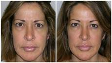 10 ways to look younger without surgery zwivel newsroom