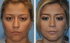 nose before and after 2016 nose before and after