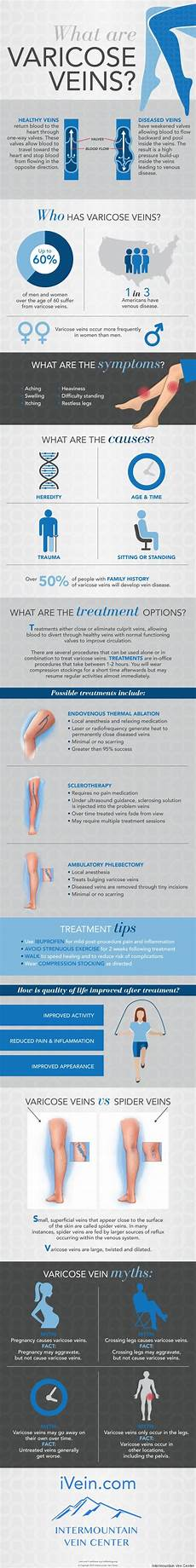 Varicose Vein Size Chart All Of Your Varicose Vein Questions Answered In One