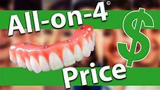 All On 4 All On 4 Dental Implants Cost Youtube