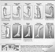 Ortho Glass Splinting Chart Ortho Glass Splinting Chart Video