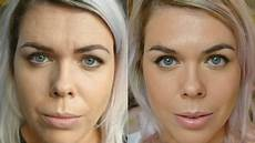 botox the procedure my experience with before after