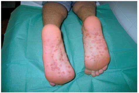Sifilis Cum Se Manifesta