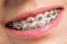 Brackets For Braces Invisible Braces The Thatch Dental Practice In Mildenhall