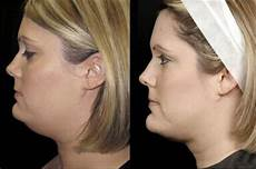 chin liposuction aqualipo before and after photos