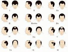 The Name S Loss Hair Loss But You Can Call It