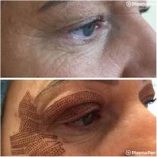 before after berkshire permanent makeup
