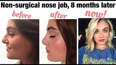 non surgical nose 8 months later permanent filler
