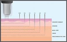 Micro Needling Depth Chart Micro Needling Nj Platelet Rich Plasma Injections Face