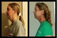 chin liposuction recovery before and after 187 liposuction