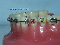 Brackets For Braces What You Need To Know About Brackets 171 Top Concord