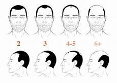 Norwood Hamilton Scale Measuring Hair Loss