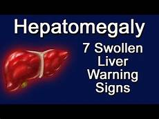 Liver Swelling Diet Chart Hepatomegaly 7 Swollen Liver Warning Signs Youtube