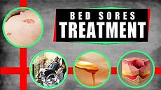 bed sores treatment how to treat bed sores at home top