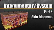 Integumentary System Diseases Integumentary System Part 3 Of 3 Diseases Of The Skin