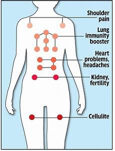 Hijama Cupping Points Chart What Are The True Medical And Scientific Benefits Of