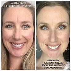 before after rodan fields redefine and lash