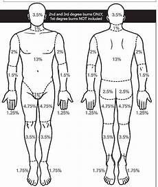 Burn Chart Body Burn Chart Amp Guidelines