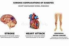cuore e vasi formazione coagulo di sangue illustrazione vettoriale