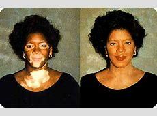 Natural Vitiligo Treatment System Review: SCAM ALERT!