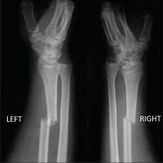 Galeazzi Fracture Early Rehabilitation In Unstable Bilateral Galeazzi