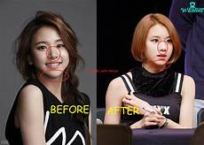 chaeyoung plastic surgery