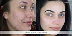 curology acne treatment reviews photos makeupalley
