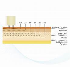 Micro Needling Depth Chart Skinpen Micro Needling Rejuvenate Skin Concierge