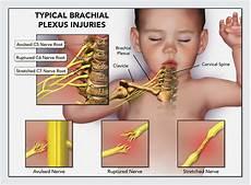 Erb Palsy Erbs Palsy Brachial Plexus Injury Medical Negligence