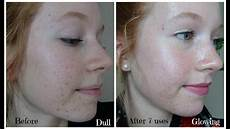 personal microderm review pmd demo and before after