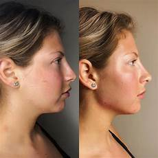 non surgical jawline enhancement using dermal fillers yelp