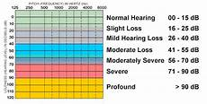 Db Loss Chart Hearing Loss Education On Hearing Loss