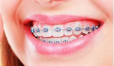 Brackets For Braces What To Do If My Braces Bracket Comes Off Weber Orthodontics