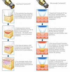 Micro Needling Depth Chart Rf Microneedling Voltaicplasma Areton Ltd