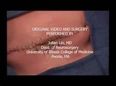 Myelomeningocele Repair Surgical Simulation Of Myelomeningocele Repair Spina