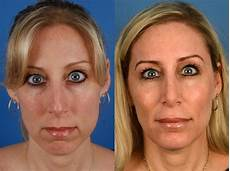 rhinoplasty pictures naples fl patient 11224