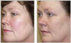 new advances for eye treatment