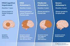 Alzheimers Stages Chart Alzheimer S Disease Symptoms Causes And Natural Support