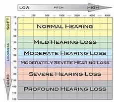 Db Loss Chart How To Read An Audiogram And Determine Degrees Of Hearing Loss