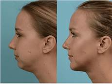chin liposuction before and after richard zoumalan