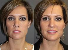 dermal fillers pictures boston ma patient 8825