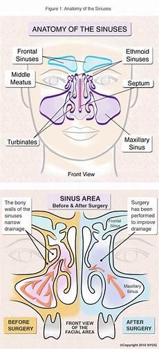 Sinus Anatomy Sinus Anatomy Check Out This Helpful Diagram Ny Sinus