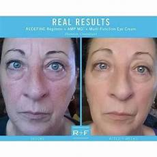 rodan and fields redefine before and after pics redefine
